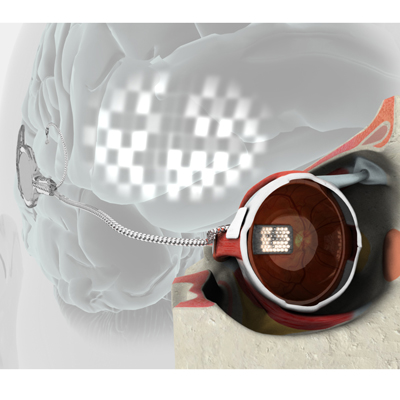 Early bionic eye prototype drawing - Image courtesy of Bionics Institute