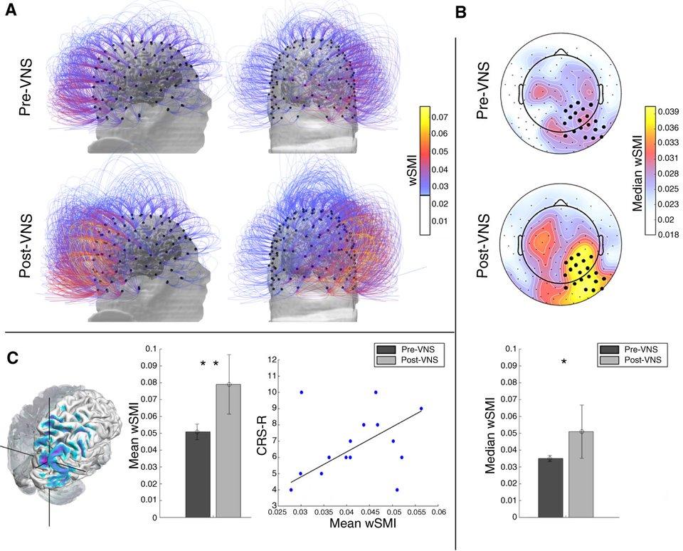 stymulacja mózgu - wykres